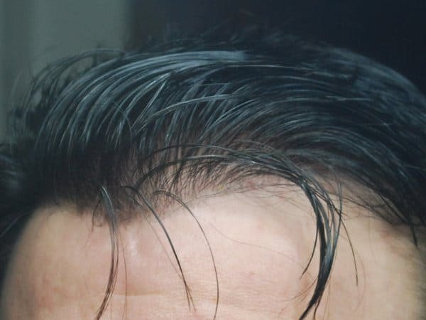 New men Hair Prosthesis
