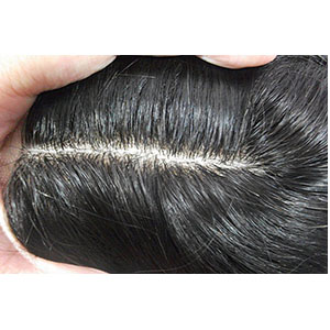 Partial Prosthesis Female Top Closure Cover for Androgenetic Alopecia.