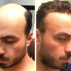 hair replacement system european hair
