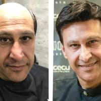 Which is the best Hair Prosthesis System