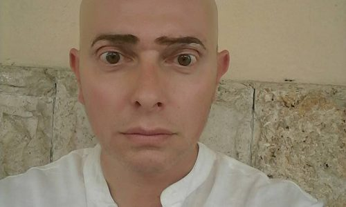 A different way of dealing with Alopecia Areata