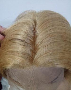 Le Blanc hair replacement for alopecia universalis