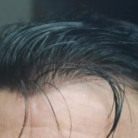 free no surgical hair thickening