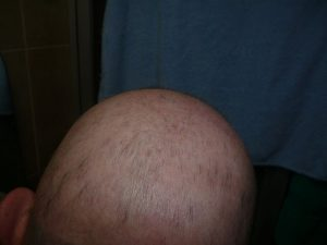ALOPECIA? HOW CAN WE SOLVE THIS PROBLEM