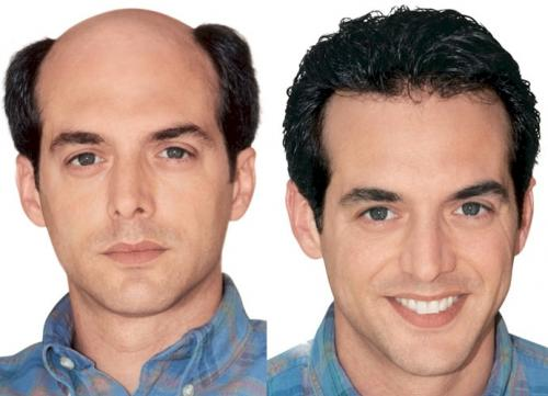 hair prosthesis lace systems man